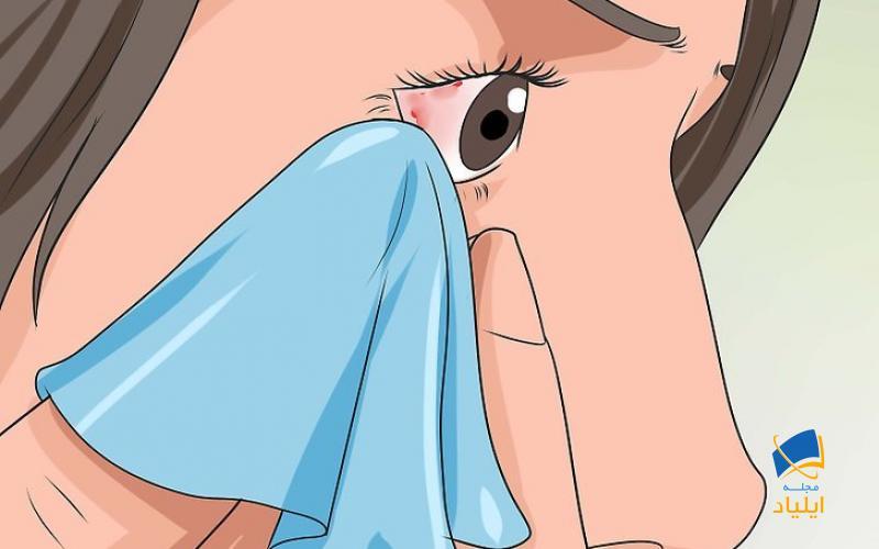 درمان التهاب ملتحمه در خانه