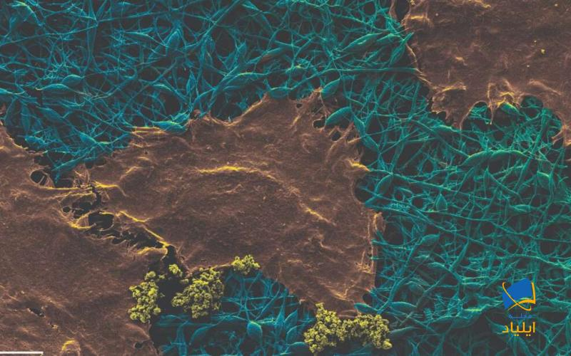 استفاده از نانوالماس برای بررسی عفونت زخمها