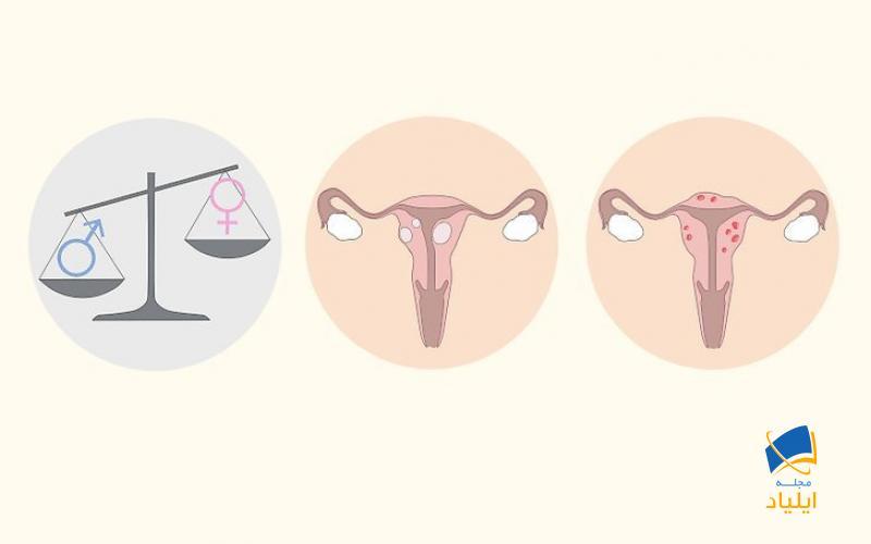 تشخیص منوراژی