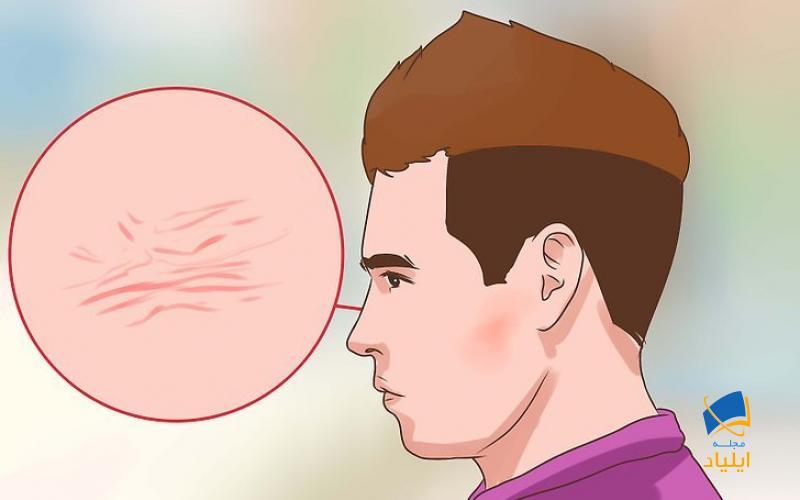 ارزیابی پوست برای علائم یرقان
