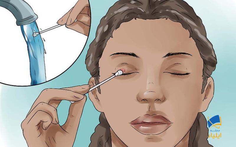 درمان یک گلمژه